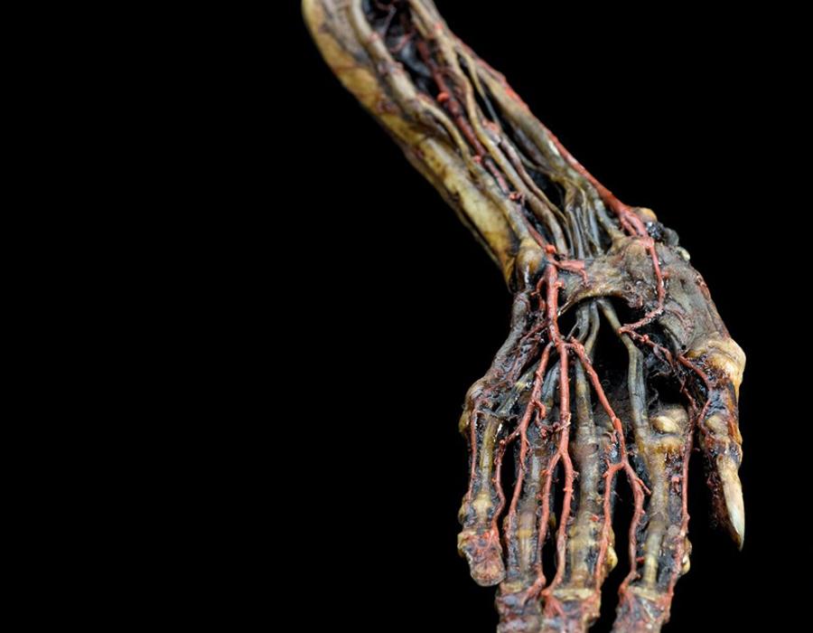 Рюйшевское искусство Анатом развил свой собственный способ препарирования, настолько эстетичный и выверенный, что современники прозвали его рюйшевским искусством. Медик тончайшими инъекциями вводил в кровеносные сосуды специальный окрашивающий состав и микроскопические ответвления сосудистой системы оказывались хорошо различимы. Никто в мире больше не мог провести такую тонкую операцию.