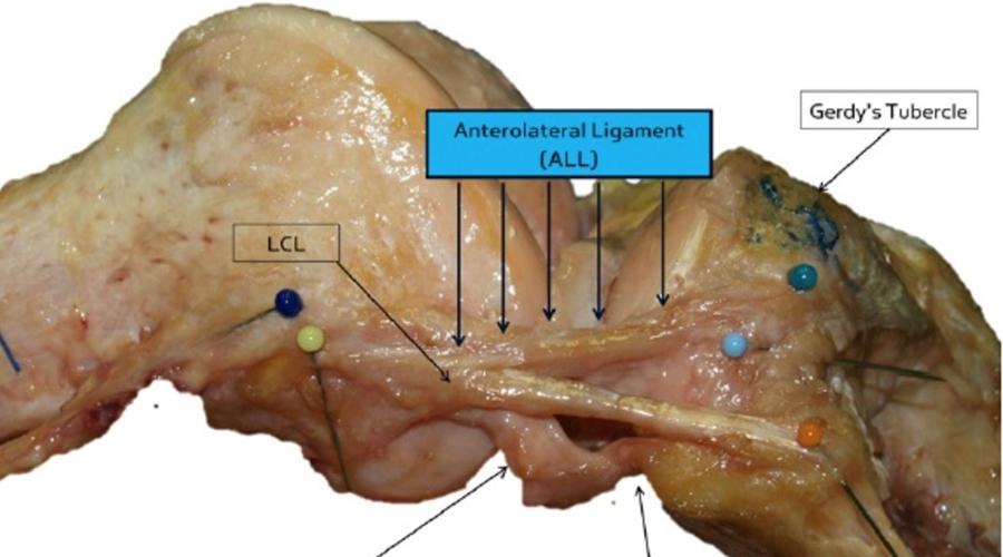 Переднебоковая связка Травмы колена не зря считаются одними из самых сложных: врачи часто просто не могли понять, почему именно колено пациента становится нестабильным. И вот, в ноябре 2013 года бельгийские хирурги обнаружили так называемую переднебоковую связку, повреждение которой и ведет к многочисленным проблемам.