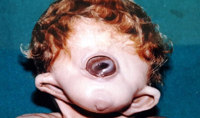 Циклопия Чаще встречается у животных, но случаи проявления у человека также отмечены. Эмбрион по каким-то причинам не разделяет глаза на две полости — в 2006 году такой ребенок появился в Индии.