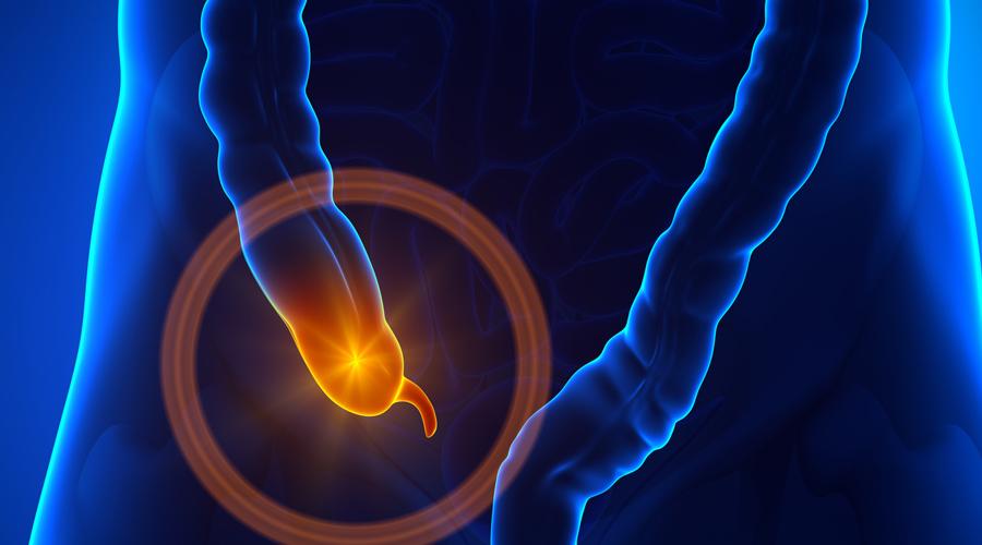 Аппендикс Долгое время считалось, что аппендикс редуцированный и потому бесполезный орган. В США даже была мода на удаление аппендикса у новорожденных, пока не оказалось, что такие дети чаще болеют и сильно отстают в умственном и физическом развитии. Именно в аппендиксе живет множество полезных бактерий, и потому людям после удаления этого органа стоит опасаться любого отравления. Иммунитет после операции также серьезно снижается.
