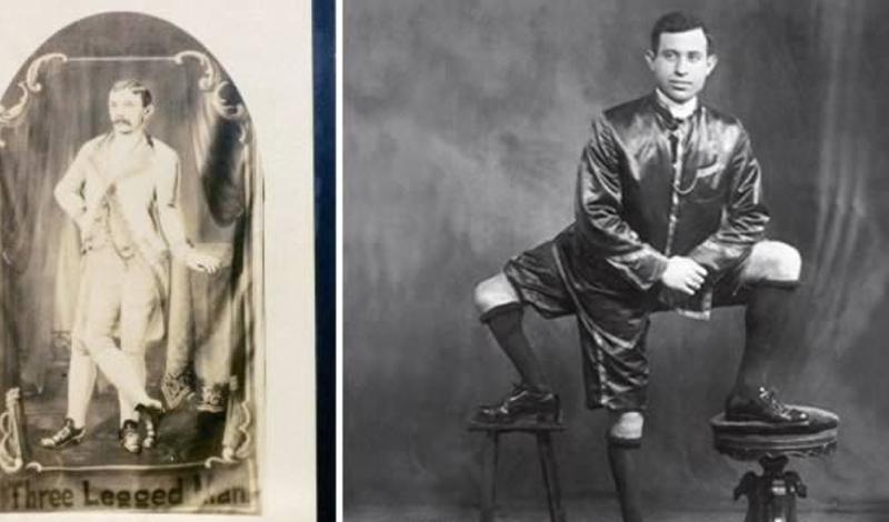 Три ноги Лентини (1881 - 1966) родился на солнечном острове Сицилия. Его уродство появилось в результате странной аномалии: один сиамский близнец в утробе частично поглотил другого. По сохранившимся свидетельствам, у Лентини было 16 пальцев и два комплекта функционирующих мужских половых органов.