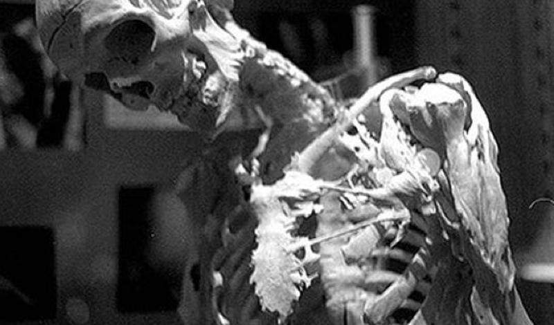 Каменный человек Синдром каменного человека или по-научному фибродисплазия является чрезвычайно редким заболеванием соединительной ткани. У людей, которые страдают от фибродисплазии, костная ткань растет там, где обычно располагаются мышцы, сухожилия и другие соединительные ткани. В течение жизни костная ткань разрастается, превращая человека в живую статую.