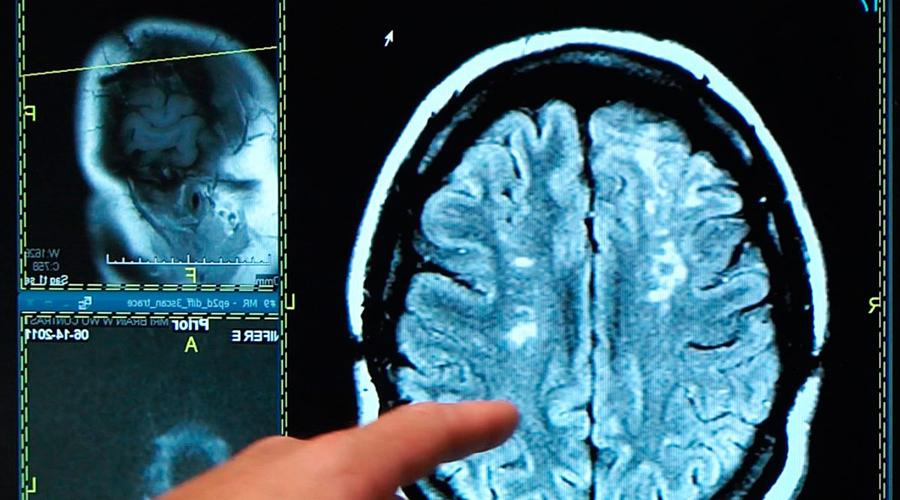 Что такое инсульт Инсульт является заболеванием, при котором нарушается кровоснабжение отдельного участка мозга. Нервные клетки без постоянной подпитки начинают разрушаться и погибают, вследствие чего нарушается работа всего организма.