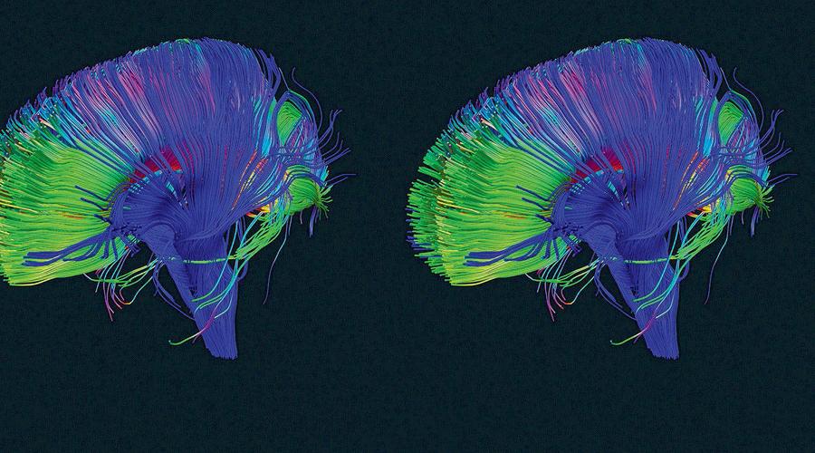 Работа во сне Такой перезагрузкой для организма является сон. Во время фазы глубокого сна клетки головного мозга сжимаются до 60% от своего дневного размера. Это происходит для того, чтобы дать место микроглиальным клеткам, которые принимаются за уничтожение ненужных синаптических связей. Ясная голова и легкое пробуждение с утра — сигнал того, что синаптический прунинг прошел успешно.