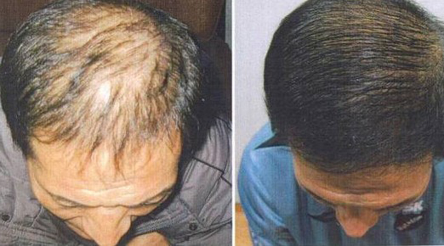 Густые волосы Проклятие мужчин за тридцать — выпадение волос. Как ни странно, но хозяйственное мыло поможет и здесь: оно укрепляет корни волос, делая их сильными. Перхоть, кстати говоря, тоже уйдет.