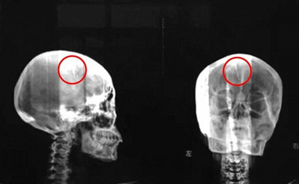 Игла Сорок девять лет мучалась Лю Као от головных болей, пока в конце концов не решилась обратиться к врачам. Тут и выяснилось, что в середине черепа бедной женщины вольготно расположилась пятисантиметровая игла. С ней Лю Као провела всю жизнь.
