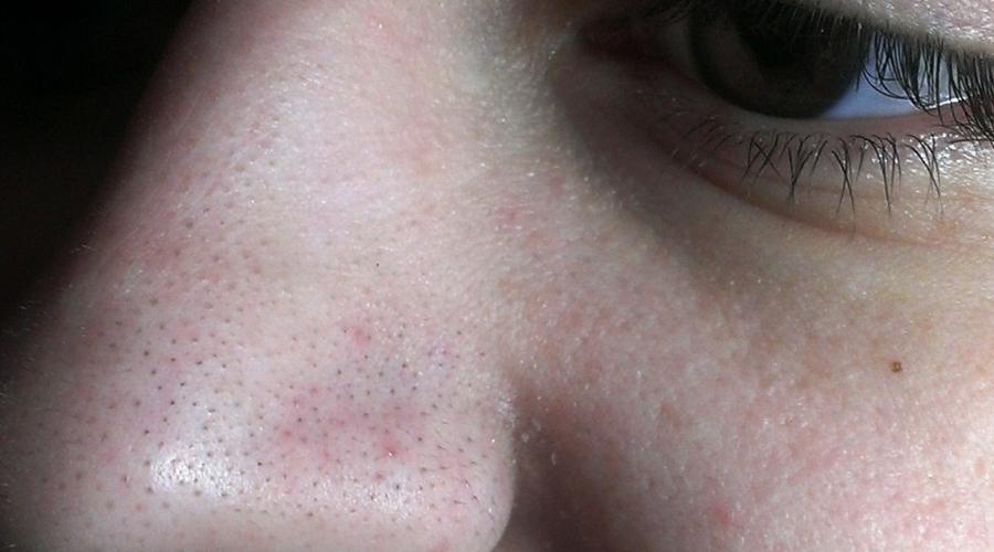 Черные точки От неприятных черных точек на лице избавляться лучше при помощи специалиста-косметолога. Самостоятельно вы больше вреда нанесете: кожа лица очень чувствительна, травмировать ее легко. Одно неудачное движение и неприятная, но исправимая черная точка превращается в не менее неприятный, но уже постоянный шрамик.