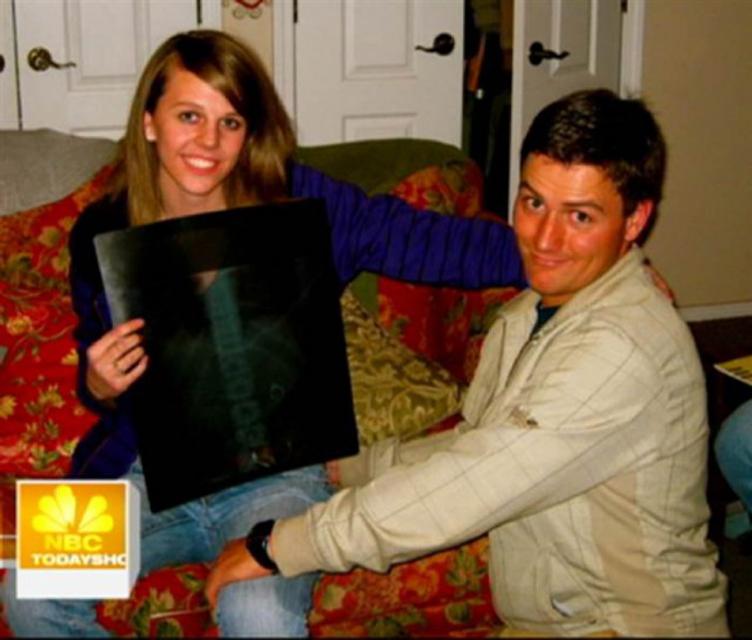 Свадебное кольцо Оригинальная свадьба? Рид Харрис из Вашингтона в этом разбирается. В 2007 году Рид решил жениться на Кейтлин Уиппл, для чего (не самый однозначный выбор) взял и засунул кольцо в любимое мороженое подруги. В реальность предложения девушка поверила только после рентгена.