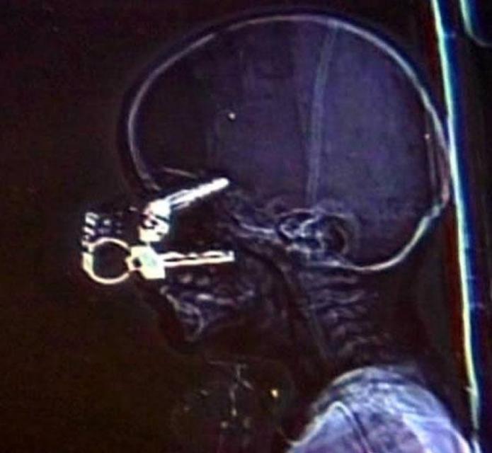 Ключи Полуторагодовалый Майк Ривен из Альбукерке бегал по двору с папиными ключами в руках. Споткнулся о камень — и ключи перекочевали ему в глаз. По счастью, врачи удалили инородный предмет и сумели залечить рану.