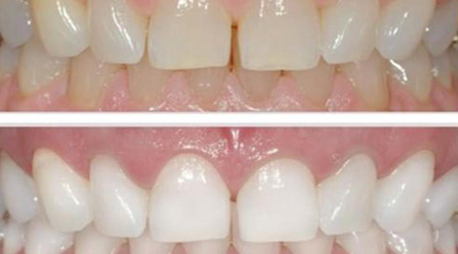Отбеливание зубов композитным материалом