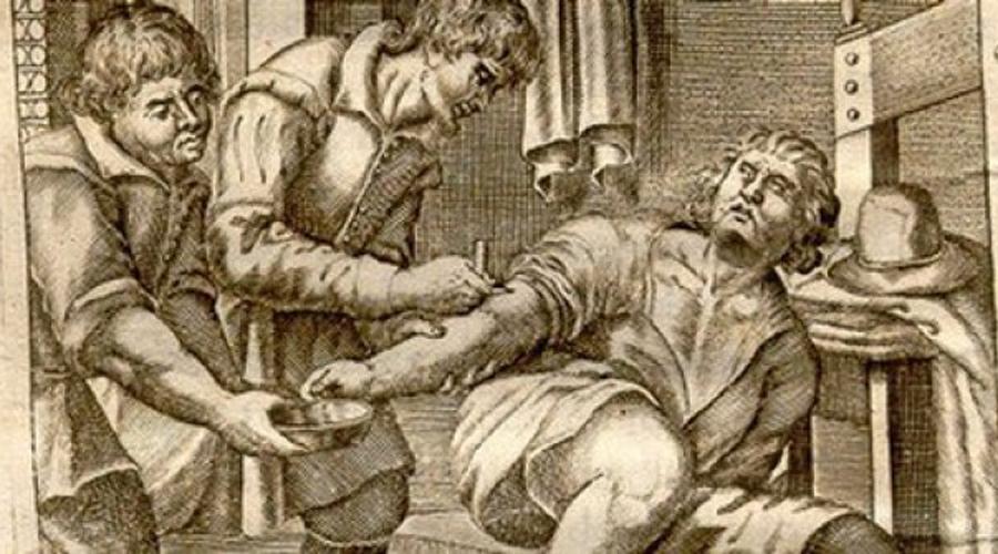 Кровопускание Греки использовали кровопускание дабы выпустить из перегулявших сограждан лишний яд. В средние века отворяли кровь и мужчинам и женщинам, просто так, для профилактики. Простуду лечили кровопусканием. Головные боли лечили кровопусканием. Депрессия? Так это, братец, давно тебе вены не вскрывали!