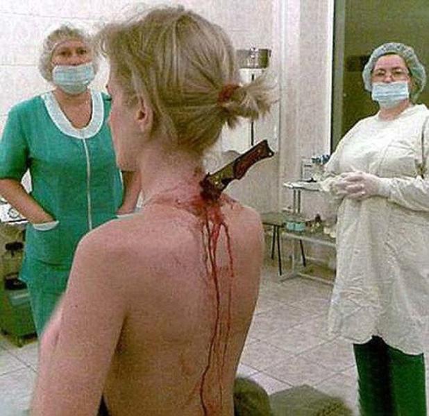 Стальная спина 22-летняя Юлия Попова возвращалась с работы, когда на нее напал маньяк. По счастью, рядом проходил полицейский патруль и убийцу спугнули. Каков же был ужас прибывших на место врачей, которые обнаружили торчащий из спины Юлии нож! Тем не менеехирурги сумели вытащить страшное оружие, не нарушив жизненно важные функции.