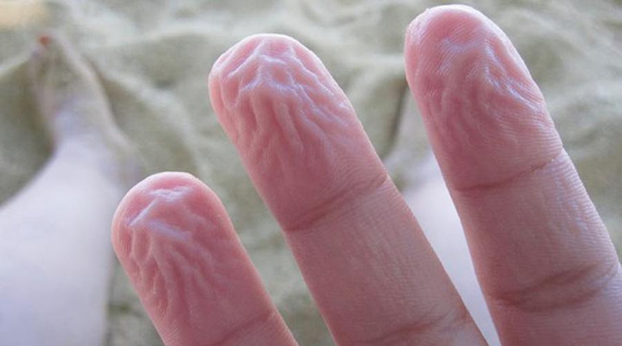 Морщины от влажности Кожа на кончиках пальцев становится от воды разбухшей и ребристой. Это происходит не просто так: в условиях повышенной влажности тело понимает, что тут может быть скользко и трансформирует кончики пальцев повышая сцепление кожи с поверхностью.