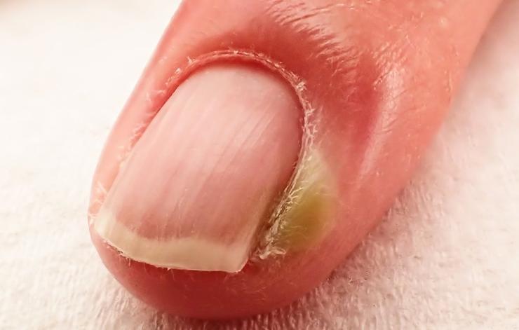 Инфекционные болезни Зацепили кожу, пока предавались любимому занятию? Поздравляем, шанс подхватить инфекцию значительно вырос. Наш рот рассадник бактерий, которые приводят к распространенной болезни, паронихии. Набухание, покраснение и гнойный нарыв в итоге — ну что, погрызли ногти?