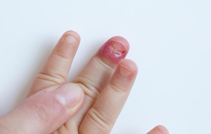 Какие бывают глисты если грызть ногти
