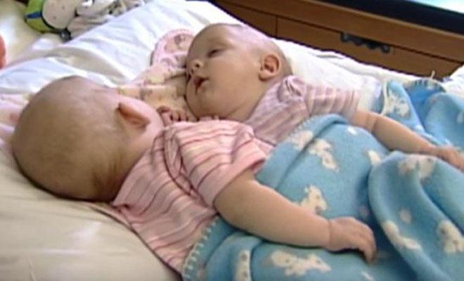 Сиамские близнецы, которых разделили 10 лет назад. Чудо, а не девочки!