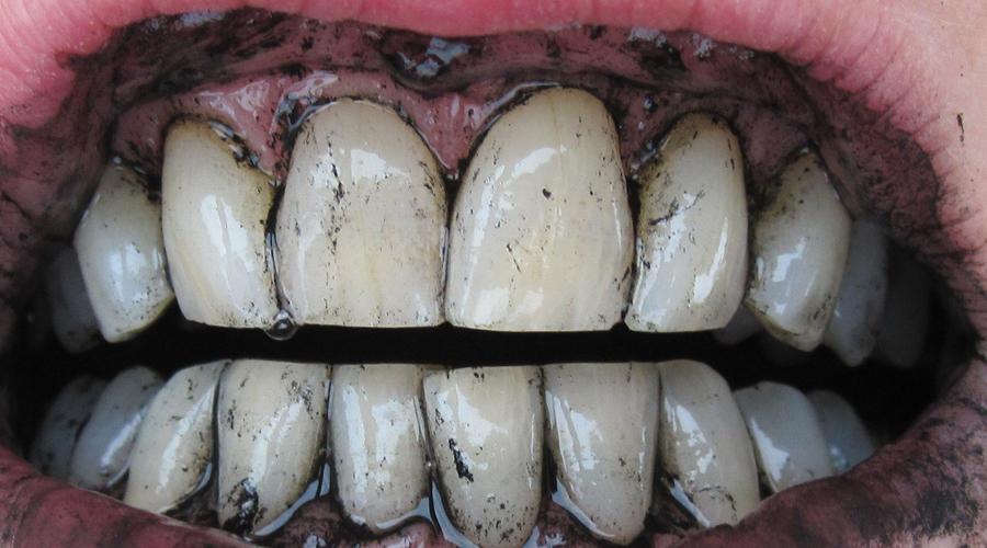 Голливудская улыбка Отбеливание зубов у дантиста влетит вам в копеечку. Пачка активированного угля будет стоить копейки уже буквально, а результат окажет такой же. Просто нанесите растолченную таблетку на щетку вместе с зубной пастой и не забывайте повторять процедуру пару раз в неделю.