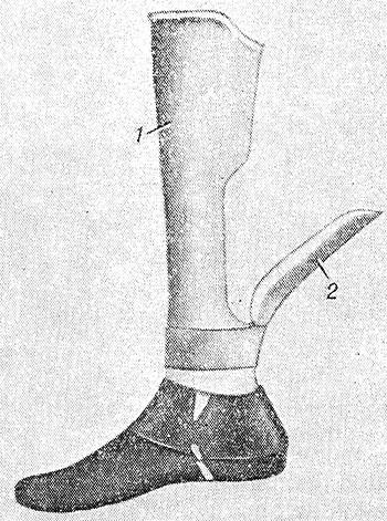 Механические протезы В 1791 году Кулибин подарил первый в мире механический протез поручику Сергею Непейцыну, потерявшему ногу выше колена. Проект изобретателя был высоко оценен Санкт-Петербургской Медико-хирургической академией, но в производство так и не пошел. Зато во Франции через десять лет наладили серийный выпуск аналогичных протезов.