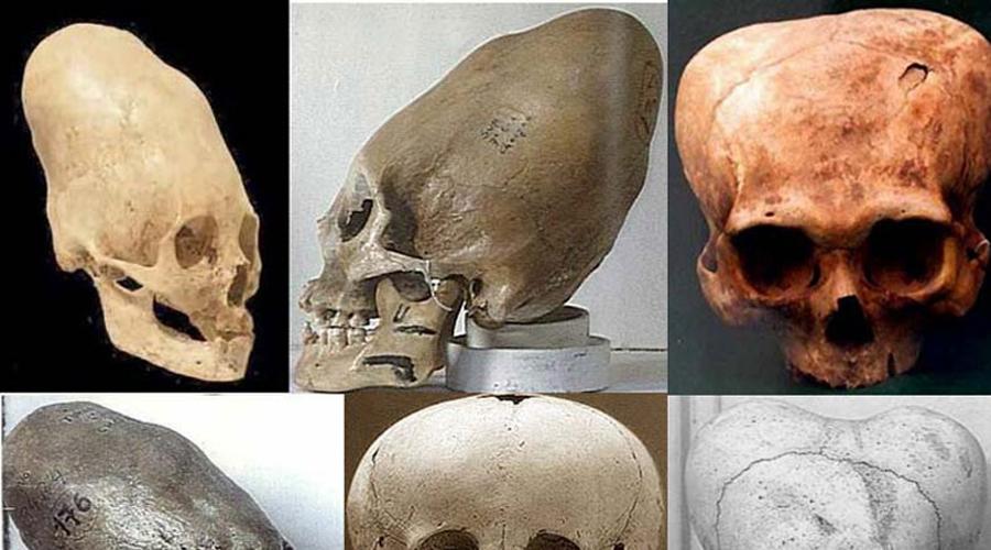 Удлиненные черепа При раскопках в регионе Лапаил археологи обнаружили удлиненные черепа. Открытие взбудоражило весь научный мир: необычная форма останков это еще цветочки, ведь ученые считали, что человек никогда не был в Антарктиде прежде.