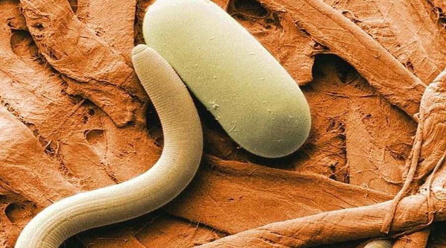 Гельминтозы Это общее название для болезней, переносимых гельминтами, паразитическими червями. Примерно 57% всех домашних животных — носители гельминтов. Человек очень легко заражается паразитами, лечение же сложное и крайне неприятное.