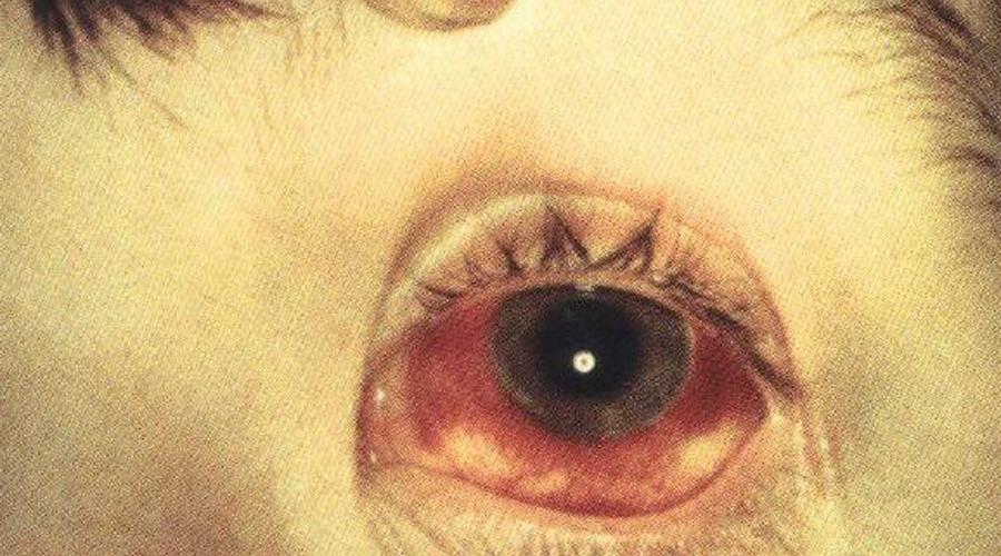 Болезнь Лайма Симптомы болезни Лайма очень схожи с симптомами обычного гриппа. Если заболевание вовремя не идентифицировать, то последствия будут ужасными, вплоть до паралича.