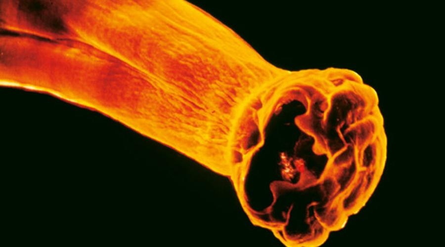Анкилостома Микроскопические личинки анкилостомы проникают сквозь мельчайшие поры в коже, а затем с кровотоком попадают в желудочно-кишечный тракт. Здесь они начинают развиваться в полноценных паразитов: прицепляются к кровеносным сосудам и питаются кровью. Малокровие, усталость, раздражительность — первые признаки заболевания.