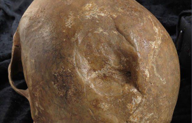 Европейские охотники за головами Принято считать, что римляне были высокоразвитой цивилизацией и не имели склонности собирать дикарские трофеи. Однако в 1988 году археологи доказали обратное. Неподалеку от Лондона было обнаружено захоронение черепов, датированное временем римской экспансии. Метки на костях указывают, что черепа принадлежали кельтам, на которых охотились римляне.