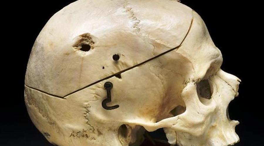 Выстрел в голову При выстреле в голову пуля пролетает сквозь мозг так быстро, что ткани не рвутся, а будто бы расталкиваются в стороны. Впрочем, результат все равно одинаков.