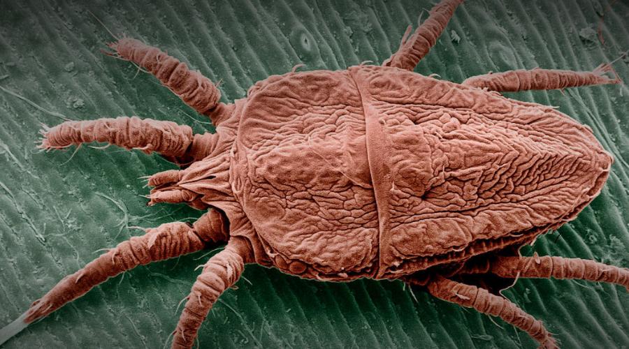 Чесоточный зудень Маленький паразит буквально прорывает тоннели в коже и плоти носителя. От невыносимого зуда можно сойти с ума, ведь чаще всего чесоточный зудень крепится в промежности.