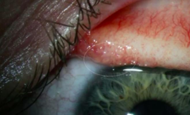 Я посмотрела на соринку и она зашевелилась»: у женщины извлекли из глаза более десятка червей-паразитов