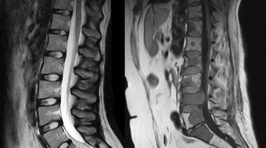 Проблемы с позвоночником Телу приходится искать какую-то амортизацию при ходьбе. Довольно быстро развивается искривление позвоночника, лордоз, кифоз и сколиоз.
