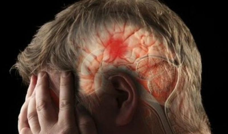 Что делать Никакого «домашнего» лечения инсульт не предполагает в принципе. Вот, почему так важно внимательно следить за его симптомами и при первых же признаках надвигающейся опасности обращаться к терапевту.
