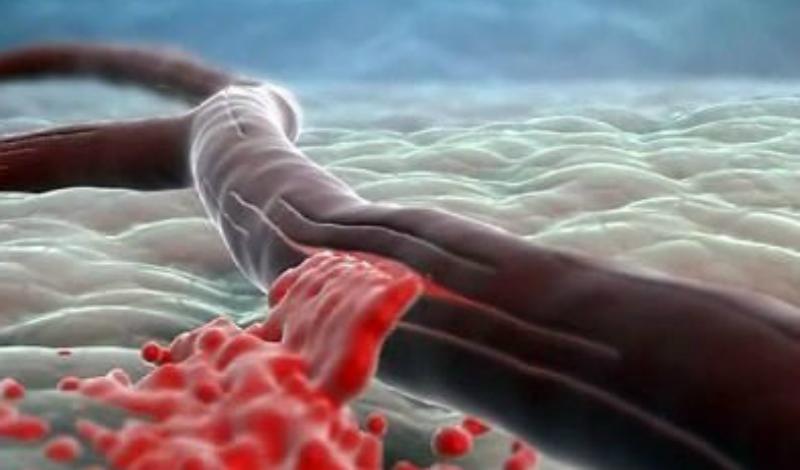 Что такое инсульт Инсульт представляет собой острое нарушение мозгового кровообращения. Это связано с разрывом или закупоркой сосудов головного мозга, что ведет к гибели клеток мозговой ткани.