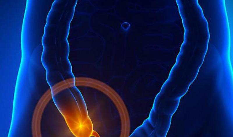 Проблемы с туалетом Обычно аппендикс располагается в нижней части живота, поэтому его воспаление часто приводит к учащению позывов к мочеиспусканию. Кроме того, мочевой пузырь может соприкасаться с воспаленным участком и тоже отдаваться болью.