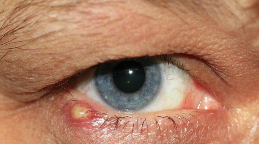 Повреждения Примерно то же самое относится и к любым признакам инфекции на поверхности тела. Даже излишне жирная кожа уже отталкивает: подсознательно мы предполагаем, что такой человек болен. Фурункулы и гнойные выделения также вызывают однозначно негативную реакцию.